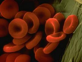 Anemia. (Suministrada)
