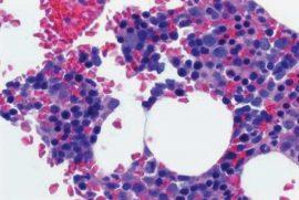 Biopsia-de-Medula-Osea 2
