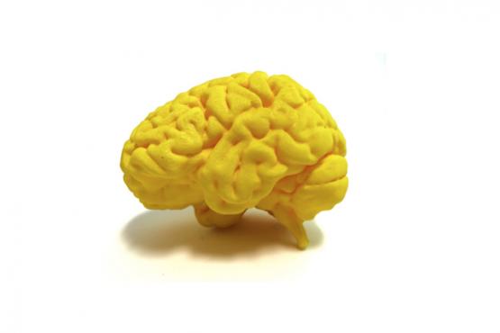 cerebro Nevit Dilmen, National Institutes of Health